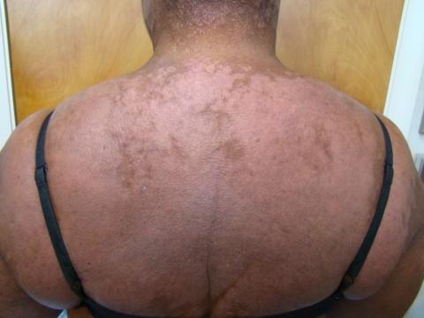 atopic dermatitis.
