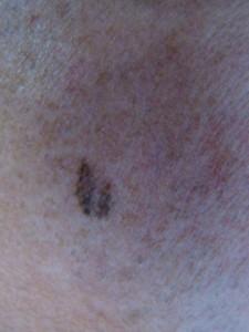 melanoma.