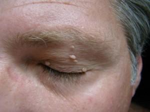 skin tags and papillomas.